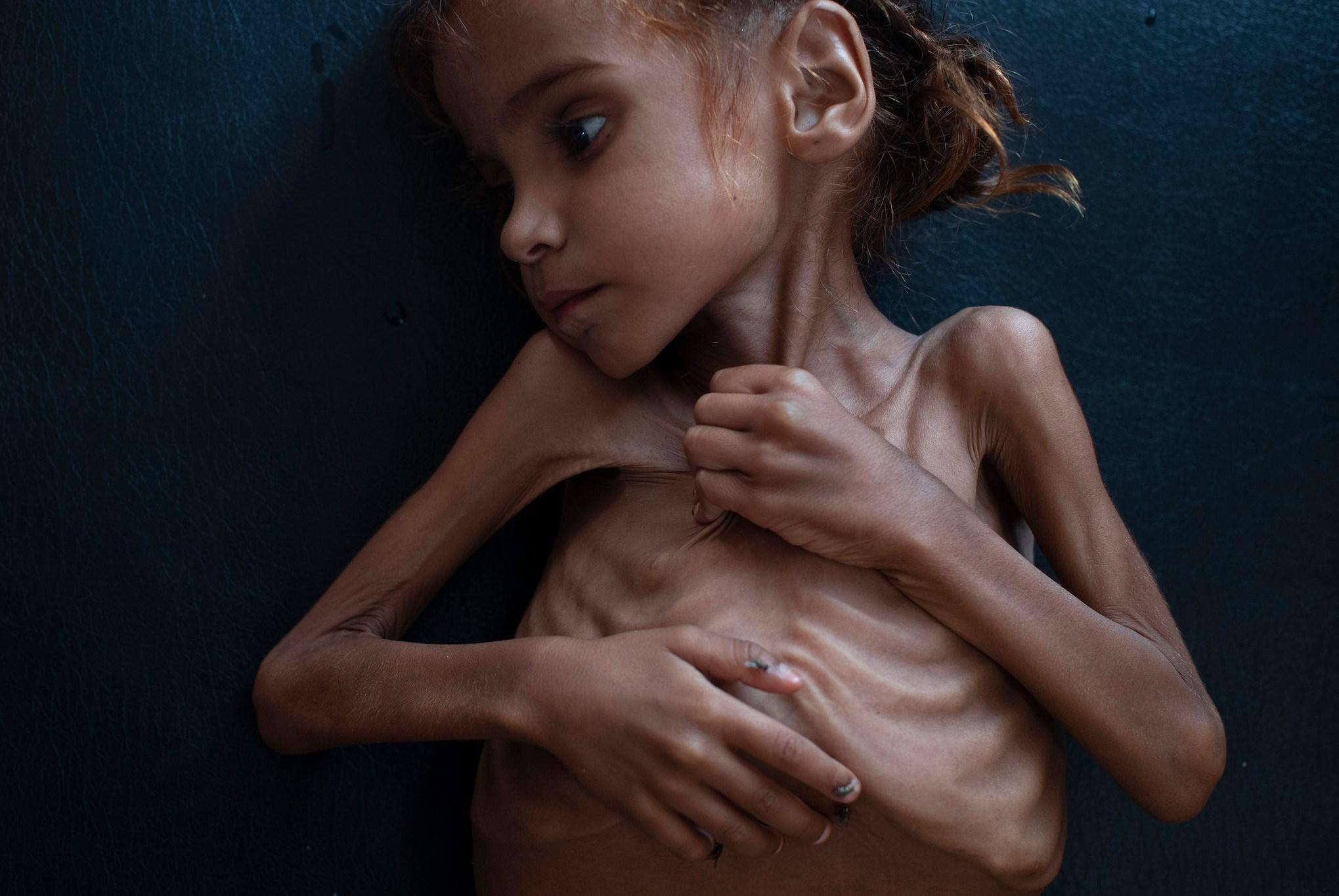 عرجت روح أمل إلى بارئها لتكون سفيراً لكل أولئك الأطفال اليمنيين الذين يُذبحون كل يوم