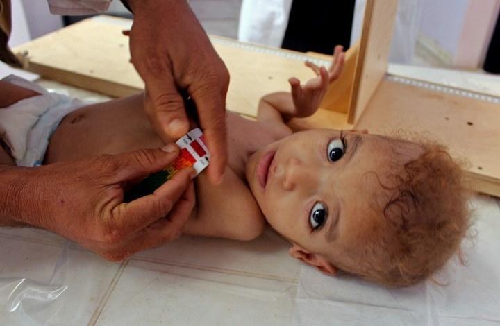 وزير الصحة: 5 ملايين و400 ألف يمني يعانون من سوء التغذية بسبب العدوان