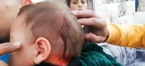 إصابة رضيع في رأسه بحجارة المستوطنين في الخليل