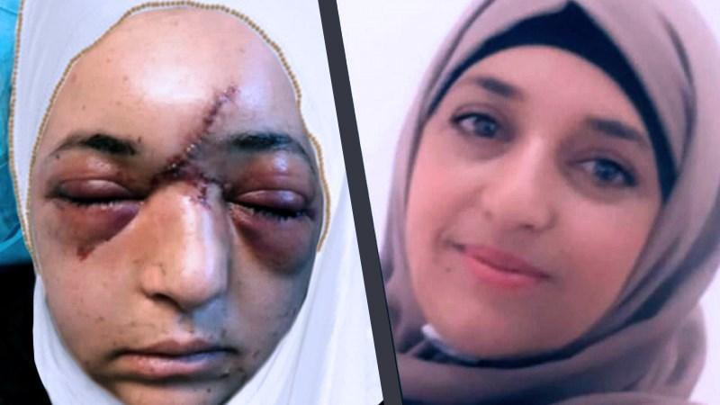 جندي إسرائيلي يكسر جمجمة إمرأة فلسطينية بالعيساوية