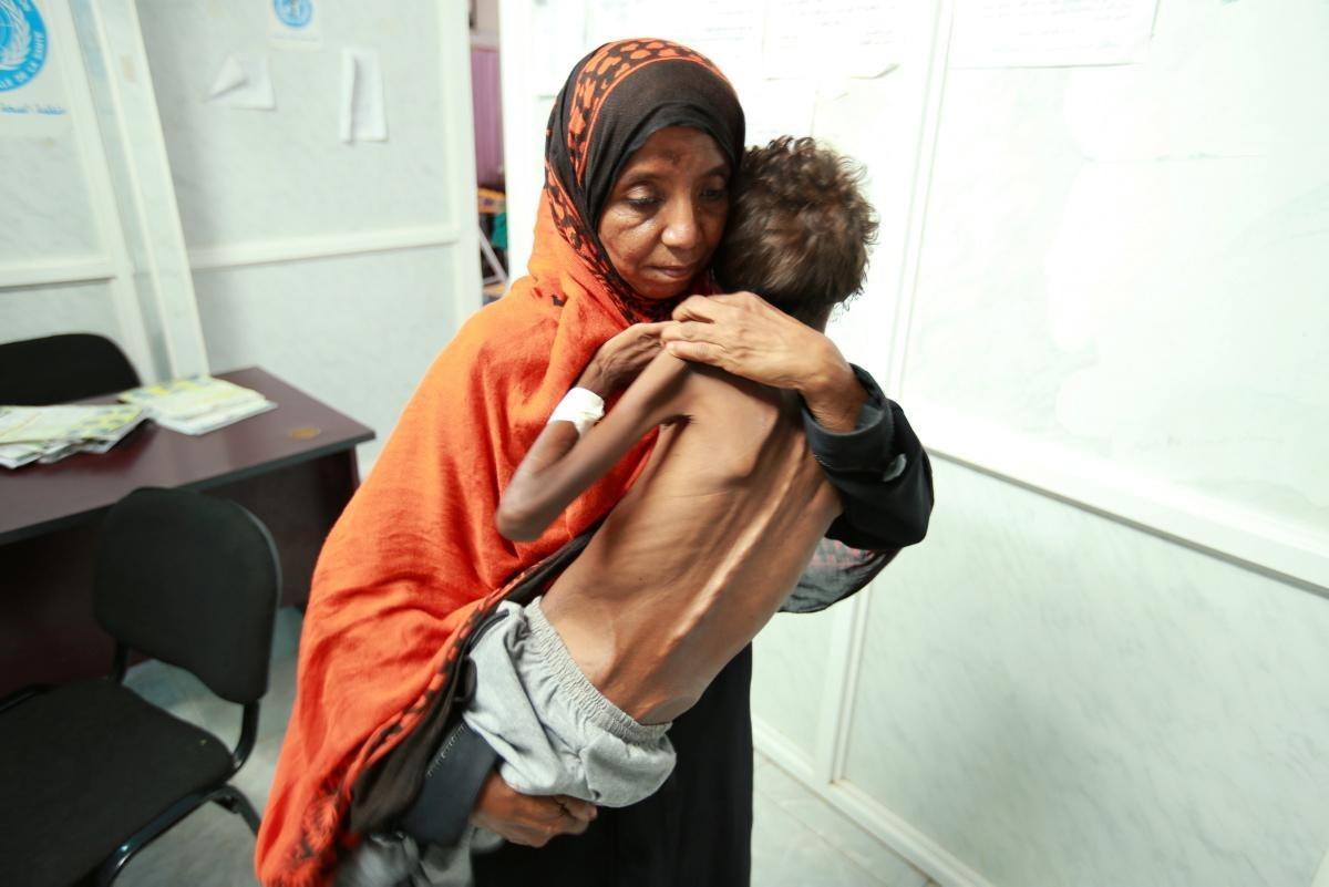 """""""مجاعة جديدة"""" في اليمن؟"""
