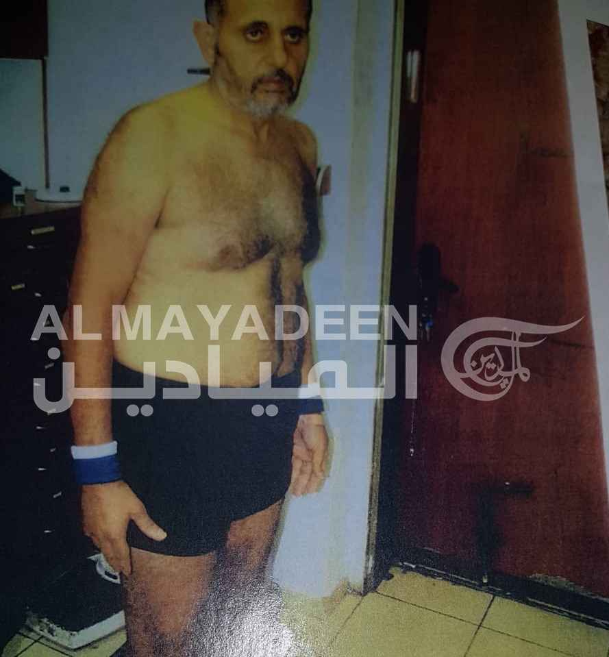 الميادين تحصل على صور تظهر التعذيب الذي تعرض له الأسير وليد حناتشة