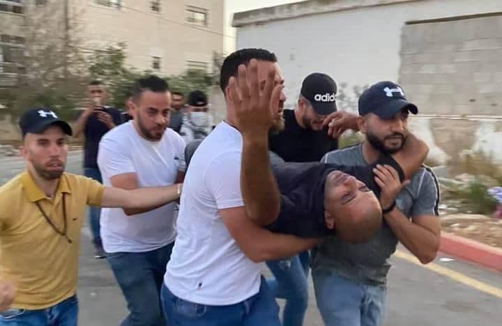 إصابة العشرات خلال اقتحام قوات الاحتلال مهرجاناً جماهيرياً لـ