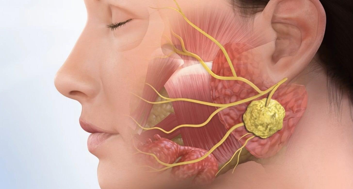 علماء هولنديون يكتشفون غدة لعابية رابعة وتشخيص امراض منطقة الرأس ستتغير