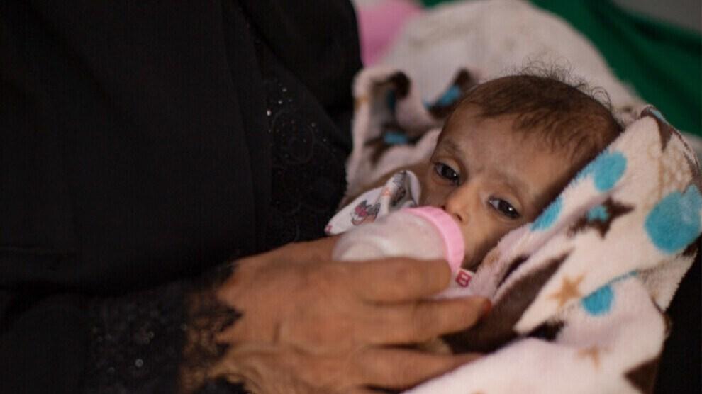 الأمم المتحدة: اليمن على شفا المجاعة