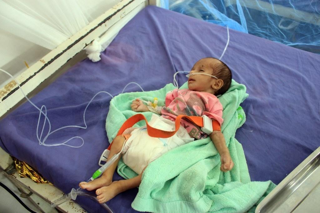رضيع يتلقى العلاج في مركز لعلاج سوء التغذية في محافظة حجة شمال اليمن في 22 نوفمبر / تشرين الثاني 2020 ( أ ف ب)