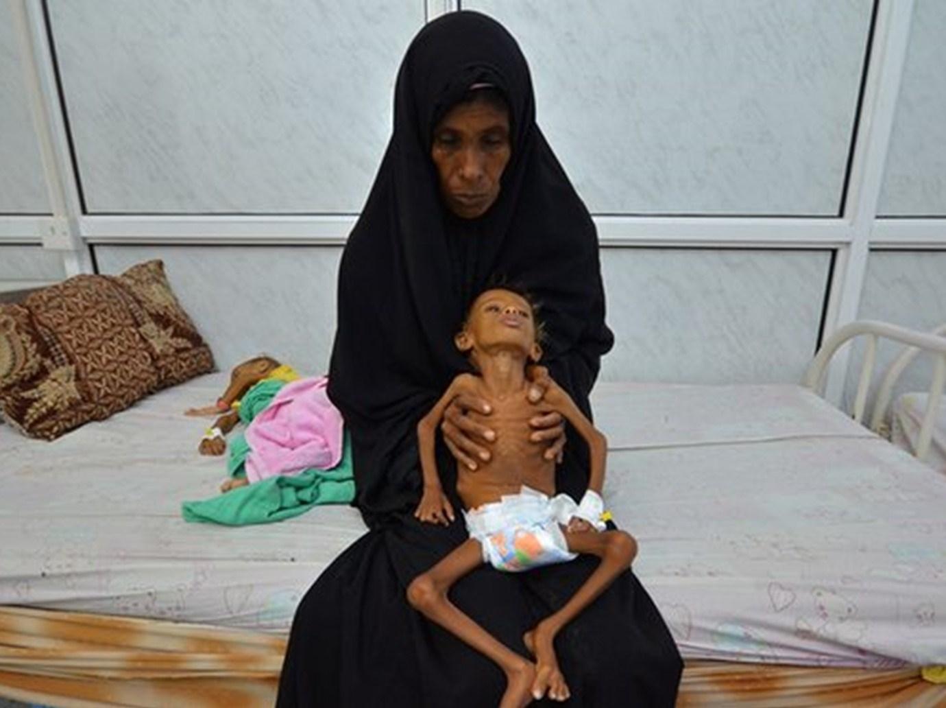 اليمن سيطر على الكوليرا، ولكن ماذا عن كورونا؟