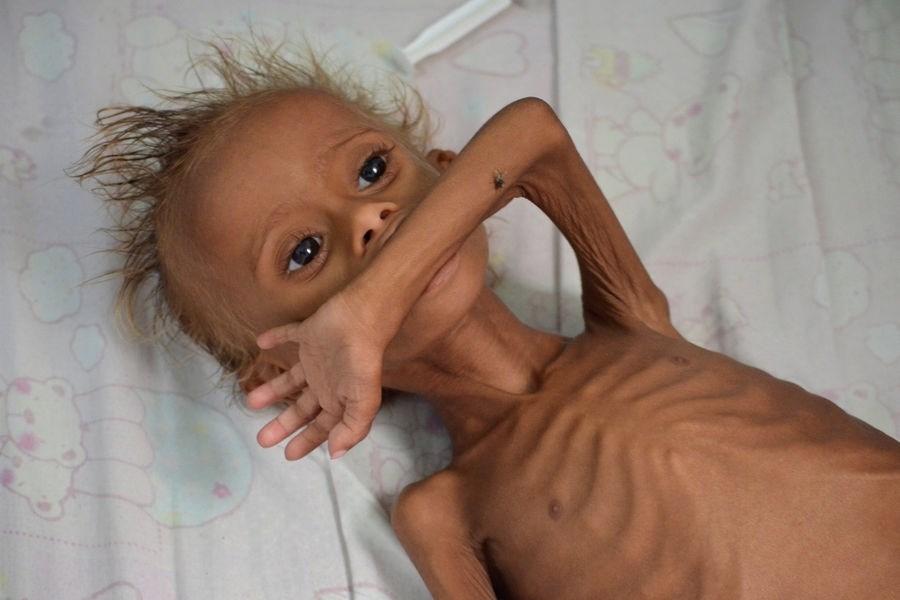 يا أهل العالم.. يُقتل أطفال اليمن من الجوع لا من كورونا