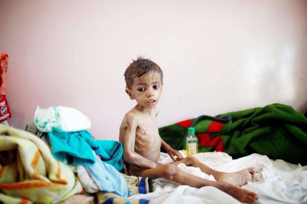 منظمة أممية: أكثر من نصف اليمنيين يعانون من انعدام الأمن الغذائي