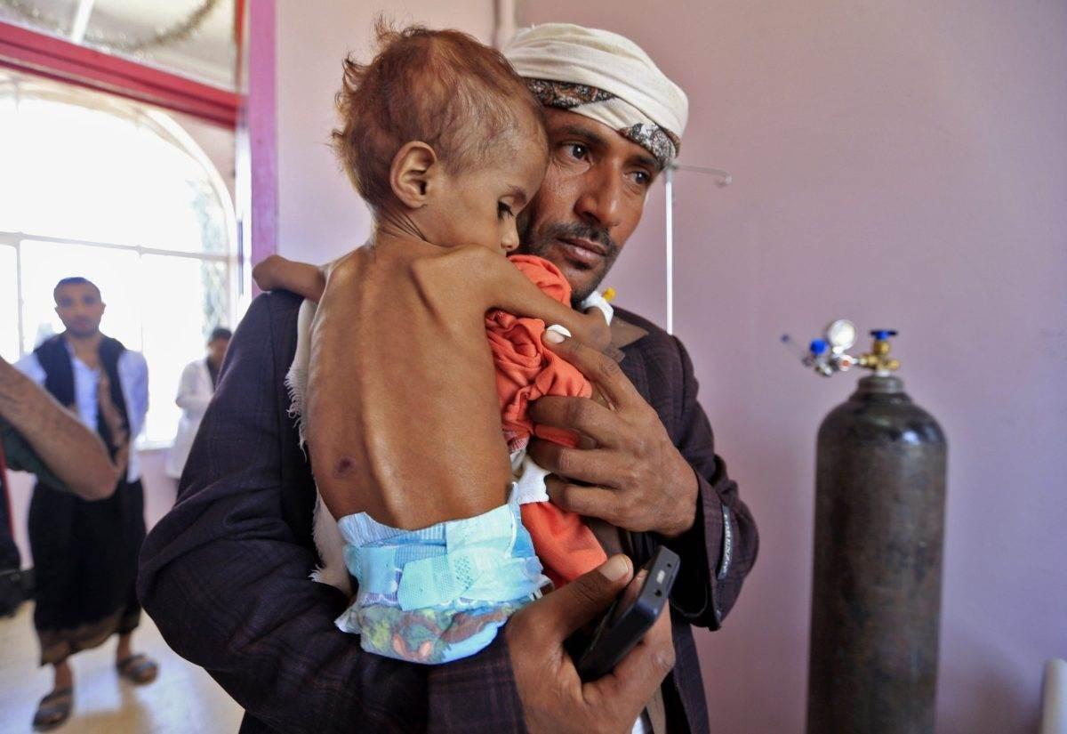 يقف النظام الصحي اليمني على حافة الانهيار