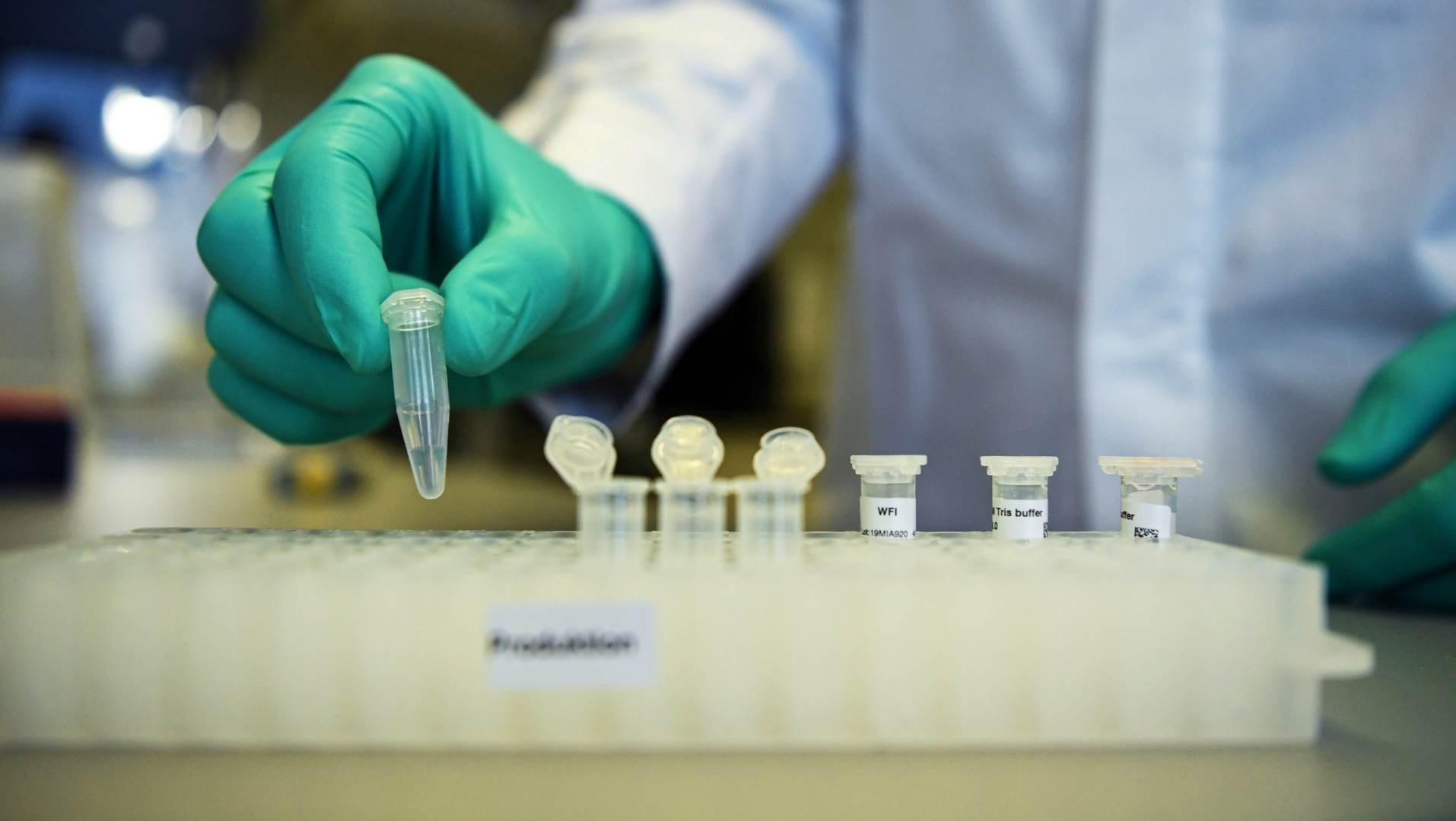 تطور جامعة أكسفورد لقاحا يصنّف بين أكثر مشاريع اللقاحات الواعدة في العالم
