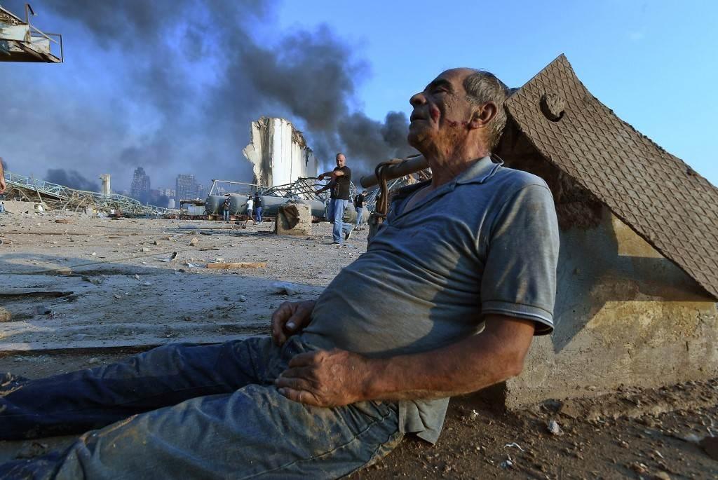 جريح جرّاء الإنفجار الذي وقع في بيروت (أ ف ب).