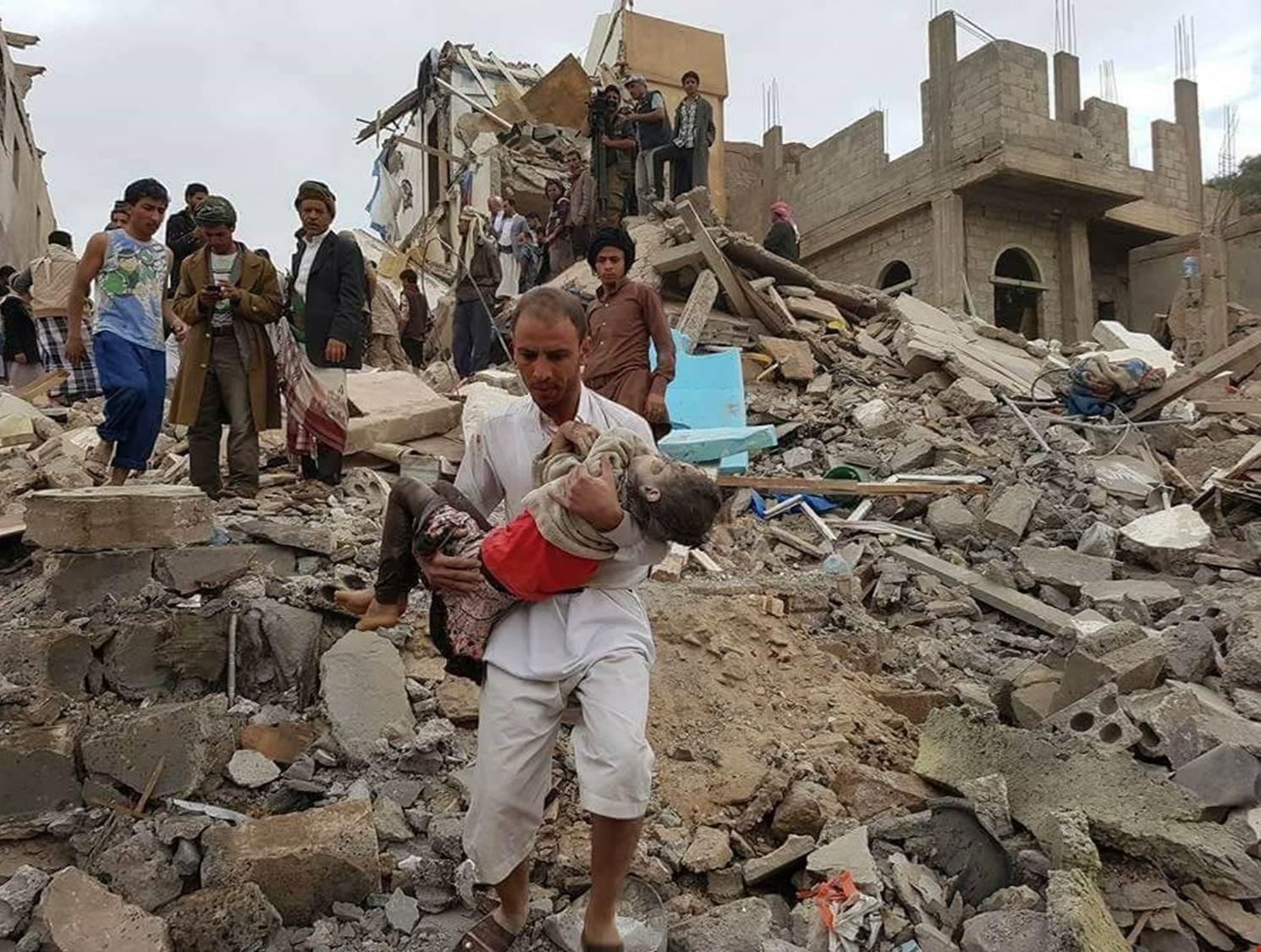 قوات التحالف السعودي ترتكب آلاف المجازر يومياً بحق الشعب اليمني