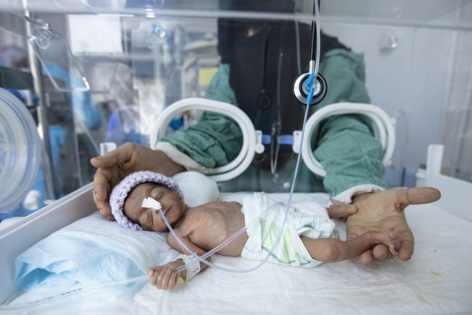 وزارة الصحة اليمنية: المنظمات الدولية لا تلتفت بجدية إلى الأزمة الإنسانية في اليمن