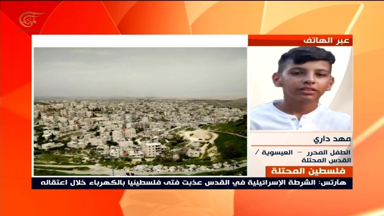 الطفل داري للميادين: الاحتلال صعقني وأخي بالكهرباء