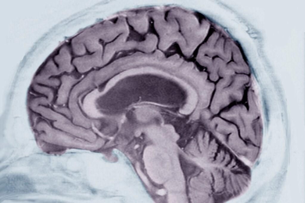 مسح ضوئي لدماغ مريض يزيد عمره عن 60 عاماً مصاباً بمرض الزهايمر